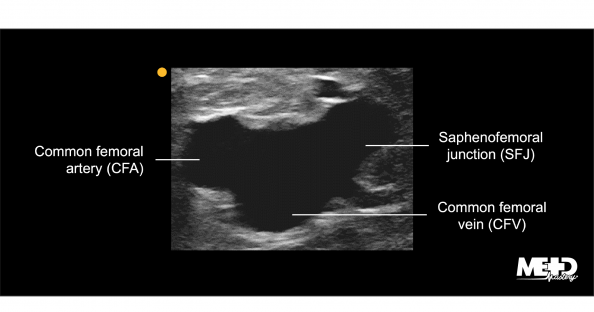 Mickey Mouse view on duplex. Ultrasound image.