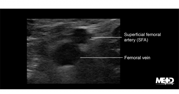 Superficial femoral artery (SFA) superior to the femoral vein on transverse duplex. Ultrasound image.