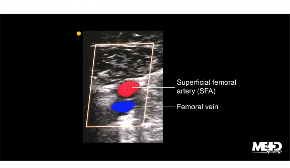 Superficial femoral artery (SFA) and femoral vein on transverse color flow duplex. Ultrasound image.