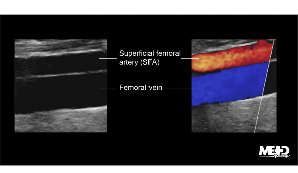 Longitudinal view of the superficial femoral artery (SFA) superior to the femoral vein on color flow duplex. Ultrasound image.