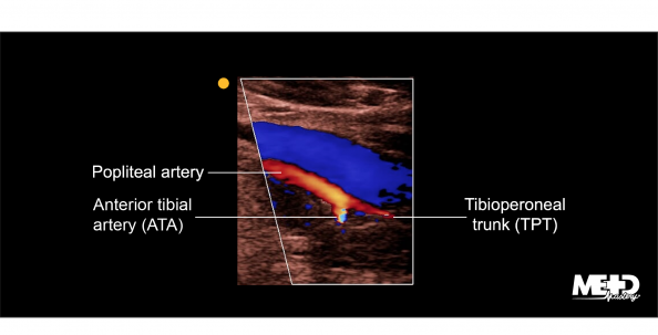 Popliteal artery bifurcation into the anterior tibial artery (ATA) and tibioperoneal trunk (TPT) below the popliteal vein on color flow duplex. Ultrasound image.