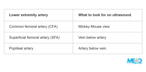 Table showing what to look for to find lower extremity arteries on ultrasound: for the common femoral artery, the Mickey Mouse view; for the superficial femoral artery, vein is below artery; for the popliteal artery, the artery is below the vein.