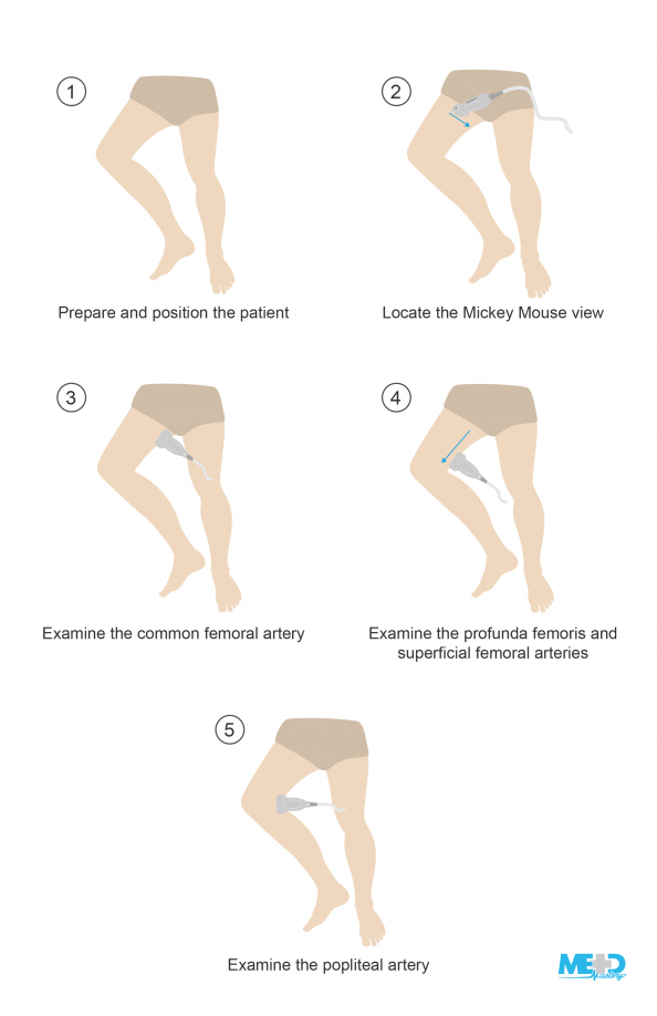 Lower torso illustration with right leg bent in a frog-legged position, and lower leg illustrations of ultrasound probe positions for a lower extremity arterial study.