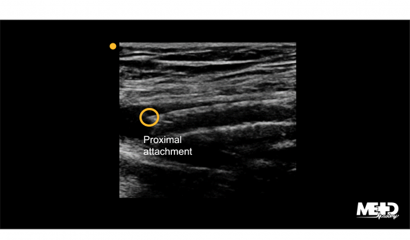 Stent in the superficial femoral artery with the proximal attachment highlighted. Ultrasound image.