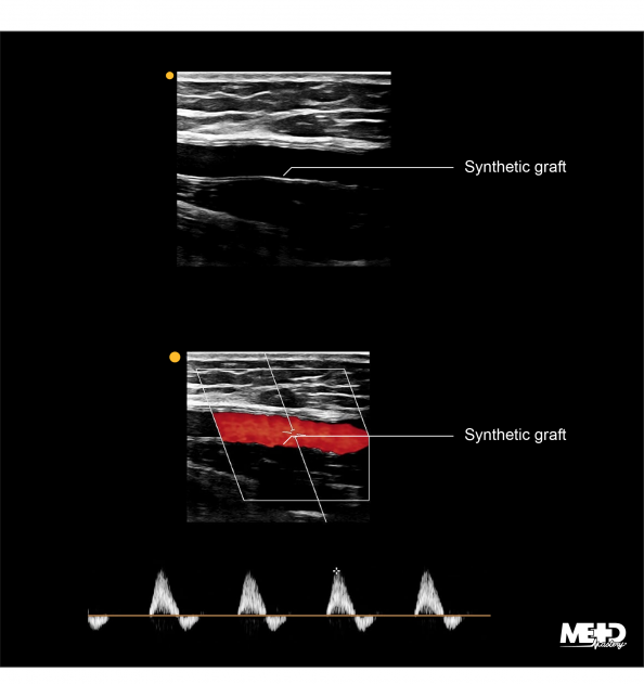 Synthetic bypass graft in black and white two-dimensions, color flow, and Doppler waveform duplex with patterned edges highlighted. Ultrasound images.