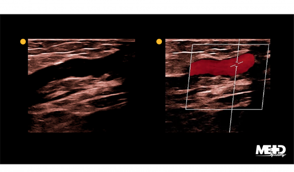 Autologous bypass graft on two-dimensional and color flow duplex ultrasound images.