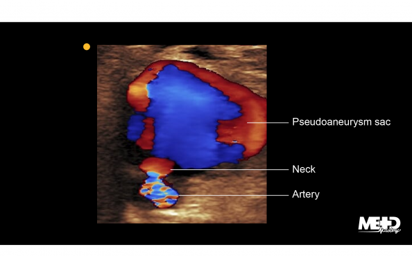 Pseudoaneurysm sac on color Doppler with yin-yang appearance, neck, and leaking artery. Ultrasound image.