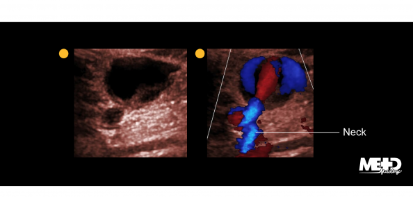 A pseudoaneurysm on black and white and color Doppler ultrasound. Image.