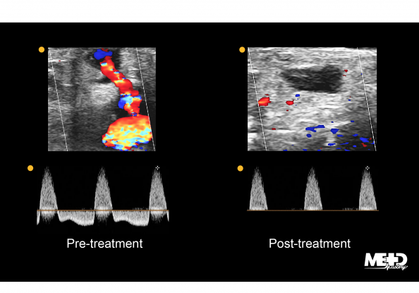 Pre- and post-treatment color flow and Doppler ultrasound images of a pseudoaneurysm.