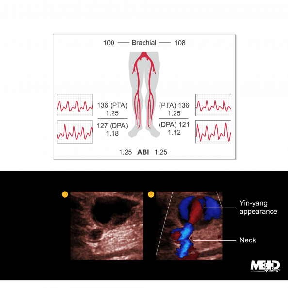 Ankle-brachial index (ABI) report illustration showing normal ratios and duplex ultrasound images showing a pseudoaneurysm.