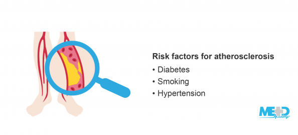 Lower legs and a magnifying glass zoomed in on an arterial plaque, and a list of risk factors for atherosclerosis. Illustration.