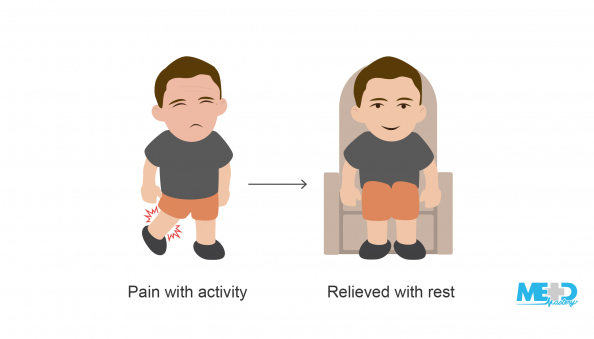 that is relieved with rest. <alt text>Patient with calf pain and same patient sitting down with no pain. Illustration.