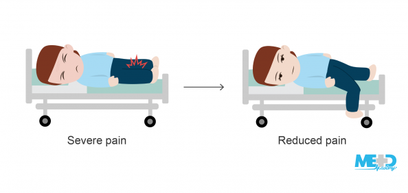 Patient on a hospital bed with severe leg pain, and same patient dangling the leg over the side of the bed with reduced pain. Illustration.