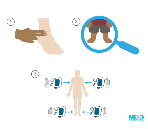 Hand taking a pedal pulse, lower legs and feet under a magnifying glass, Doppler pen and blood pressure cuff with a pump. Illustration.