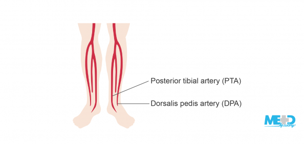 Lower legs showing the location of the posterior tibial artery (PTA) and dorsalis pedis artery (DPA). Illustration.