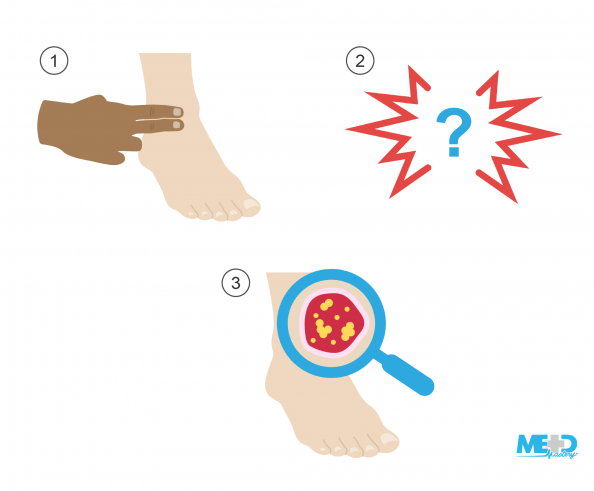 Hand palpating pedal pulses, question mark surrounded by jagged red lines to represent pain, foot with a magnifying glass inspecting an ulcer. Illustration.