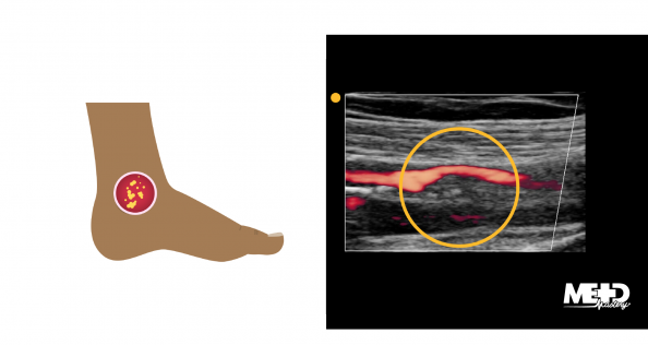 Illustration of a foot with an arterial ulcer that is round and well-defined. Ultrasound showing plaque buildup in an artery.