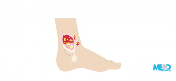 Foot with a venous ulcer that is irregular, shallow, and weeping fluid. Illustration.