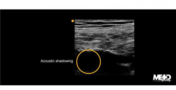 Arterial wall calcification with typical black acoustic shadowing over the artery. Ultrasound image.
