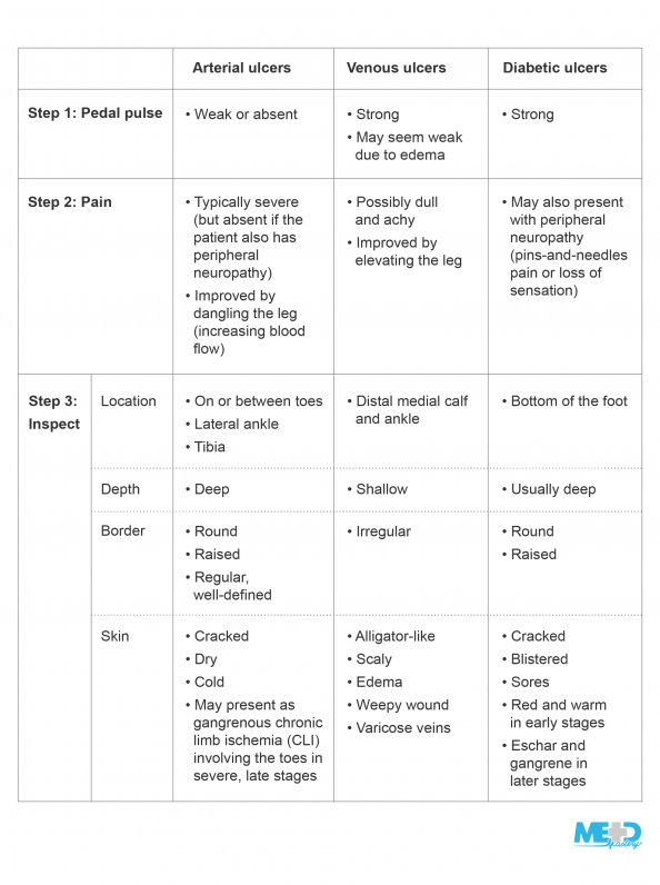 Table summarizing the typical pedal pulse, pain, and inspection findings with arterial, venous, and diabetic ulcers.