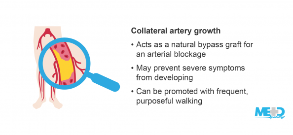 Legs with magnifying glass highlighting an arterial blockage with collateral artery growth beside a list of collateral artery growth benefits. Illustration.