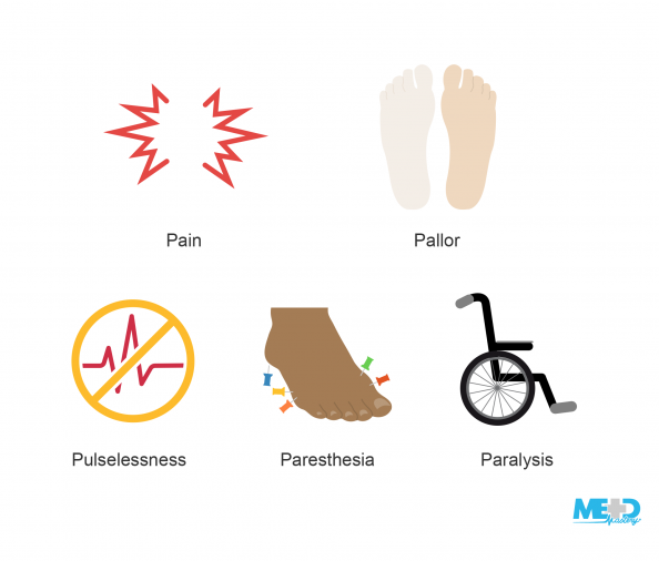 Red jagged lines representing pain, plantar feet with one presenting with pallor, heartbeat crossed out, foot with pins in it, wheelchair. Illustration.
