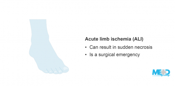 Blue foot beside a list of facts about acute limb ischemia (ALI). Illustration.