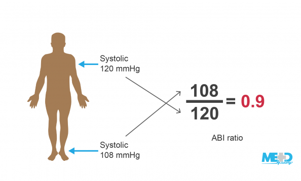 Patient with a systolic blood pressure of 120 mmHg in the arm and 108 mmHg in the ankle. Ankle-brachial index (ABI) equation showing 108 over 120 equals 0.9. Illustration.