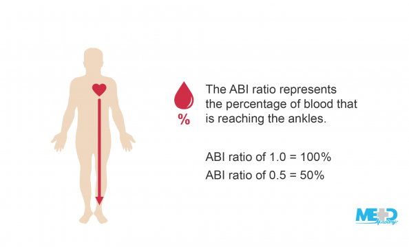 Patient with downward arrow from the heart to the ankle beside text. ABI ratio of 1.0 equals 100%. ABI ratio of 0.5 equals 50%. Illustration.