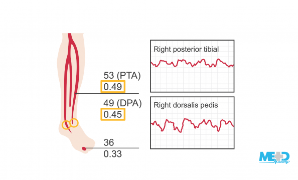 Lower leg with abnormal ankle-brachial index (ABI) ratios and waveforms for the right posterior tibial artery (PTA) and the right dorsalis pedis artery (DPA). Illustration.