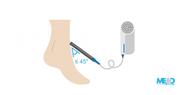 Ankle with Doppler probe being held at 45 degrees against the skin and pointing towards the heart. Illustration.