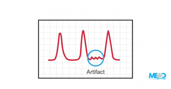 Ankle-brachial index waveform with an artifact highlighted. Illustration.
