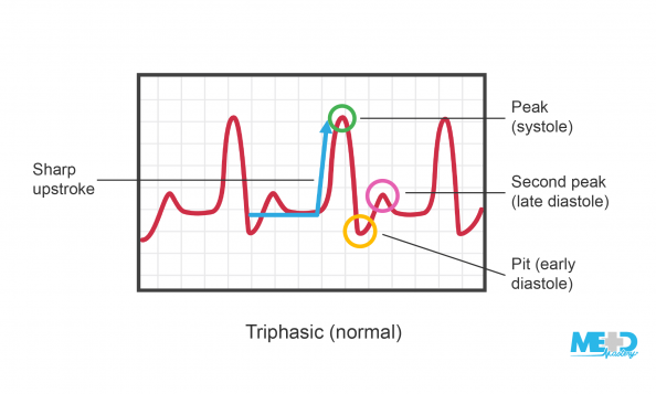 Ankle-brachial index (ABI) triphasic waveforms with the sharp upstroke, peak (systole), second peak (late diastole), and pit (early diastole) highlighted. Illustration.