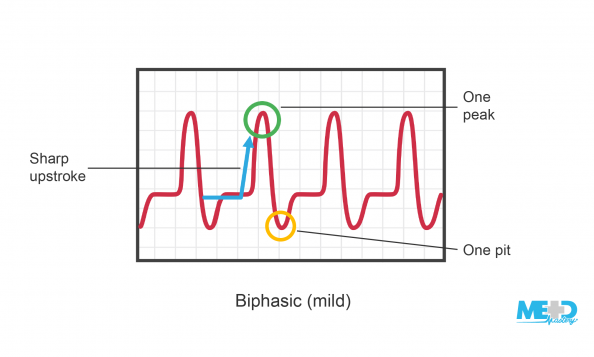Ankle-brachial index (ABI) biphasic waveform featuring a sharp upstroke, one peak, and one pit. Illustration.