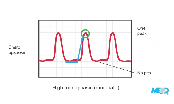 Ankle-brachial index (ABI) high monophasic waveforms with the sharp upstroke, one peak, and no pits highlighted. Illustration.
