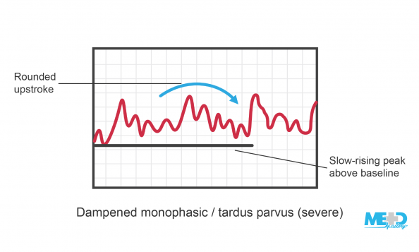 Ankle-brachial index (ABI) dampened monophasic waveforms with a slow-rising peak above the baseline and a rounded upstroke highlighted. Illustration.