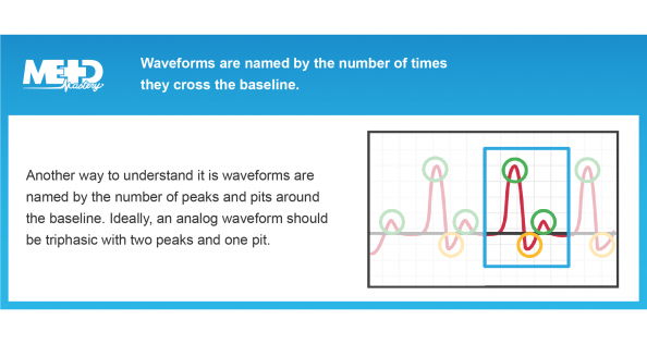 Waveforms are named by the number of times they cross the baseline. Another way to understand it is waveforms are named by the number of peaks and pits around the baseline. Ideally, an analog waveform should be triphasic with two peaks and one pit. Medmastery note.