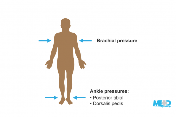 Body indicating the locations of systolic pressure measurements including the brachial pressures and ankle pressures. Illustration.