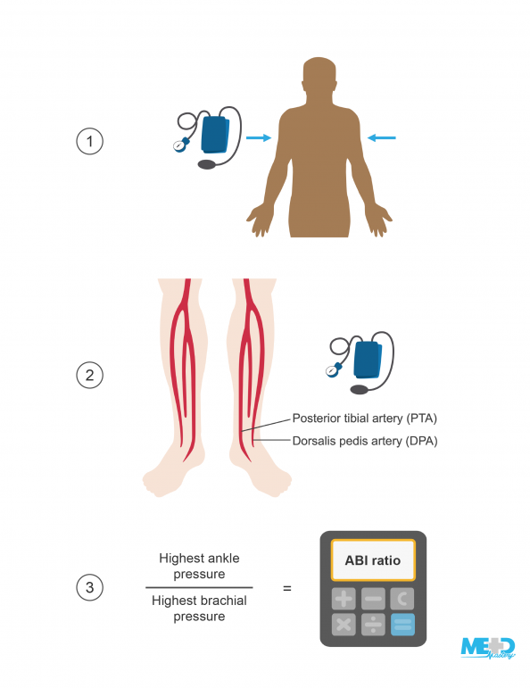 Torso and blood pressure cuff pointing to both arms, legs with posterior tibial artery (PTA) and dorsalis pedis artery (DPA) labeled beside a blood pressure cuff, and formula for the ankle-brachial index (ABI) ratio. Illustration.