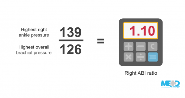 Formula for the right ankle-brachial index (ABI) ratio. The highest right ankle pressure of 139 divided by the highest overall brachial pressure of 126 beside calculator showing 1.10. Illustration.