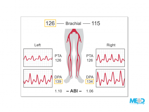 Report showing a higher left brachial pressure of 126 mmHg and higher dorsalis pedis artery (DPA) pressures of 139 mmHg and 134 mmHg, resulting in a left ankle-brachial index (ABI) of 1.10 and a right ABI of 1.06. Illustration.