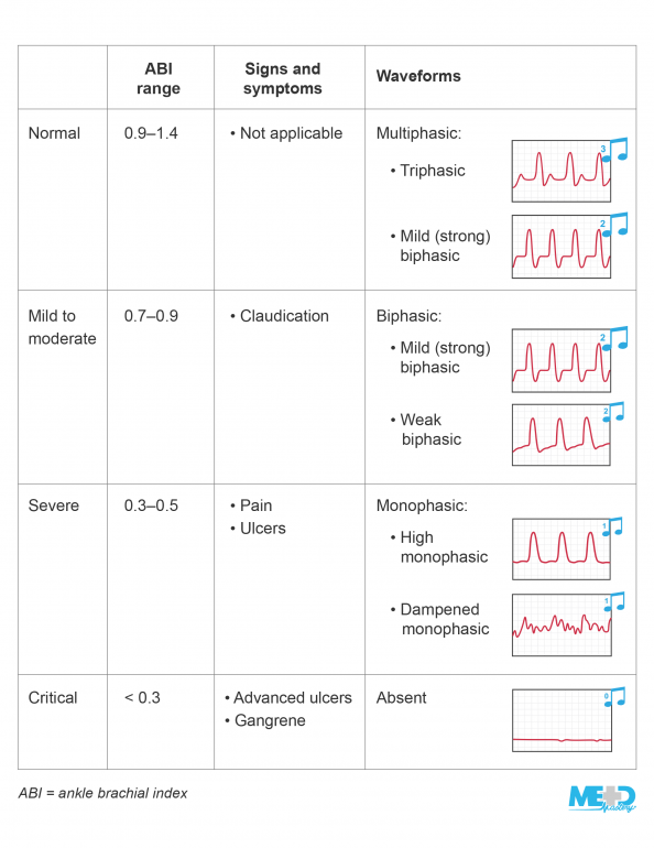 Table summarizing the degrees of peripheral arterial disease and their associated ankle-brachial index (ABI) ranges, signs and symptoms, and waveforms.